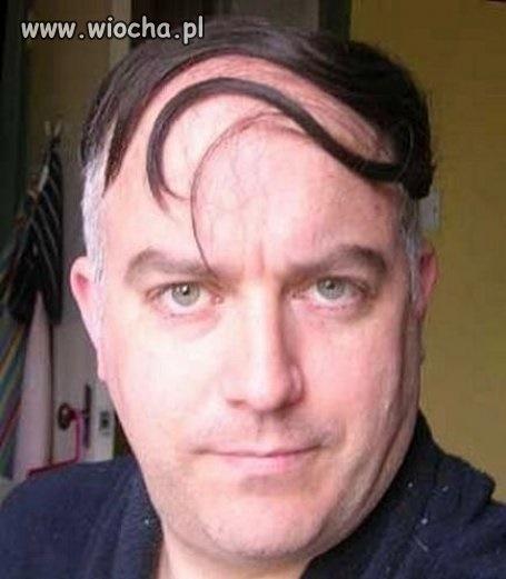 Fryzura Dla łysiejących